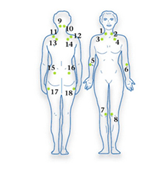 Tender points, os pontos de da fibromialgia