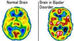 cérebros dos pacientes com depressão bipolar